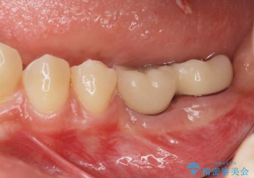 臼歯の噛み合わせをインプラントを用いて回復するの症例 治療後
