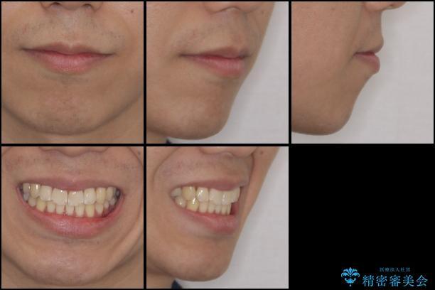 インビザラインで整った口元にの治療後(顔貌)