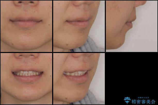 インビザライン矯正とインプラント補綴 深い咬み合わせと奥歯の欠損治療の治療後(顔貌)