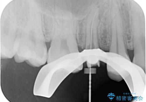 割れた歯を引っ張り出す 右上と左上の虫歯治療の治療中
