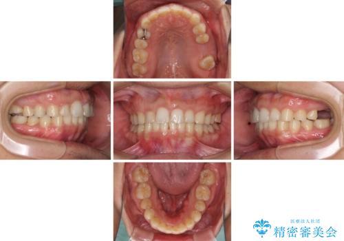 インビザライン矯正とインプラント補綴 深い咬み合わせと奥歯の欠損治療の治療中