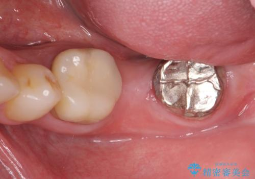 不適合ブリッジの除去  インプラントによる咬合再構成の治療前