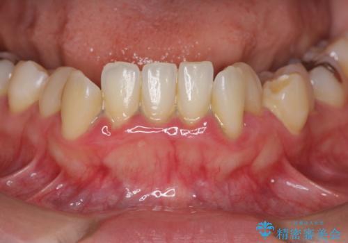 歯周初期治療の重要性の治療前