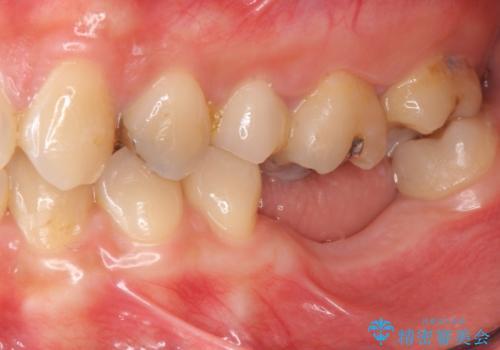 臼歯の噛み合わせをインプラントを用いて回復するの治療前