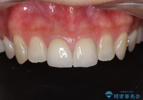 前歯 審美改善セラミック治療の治療後