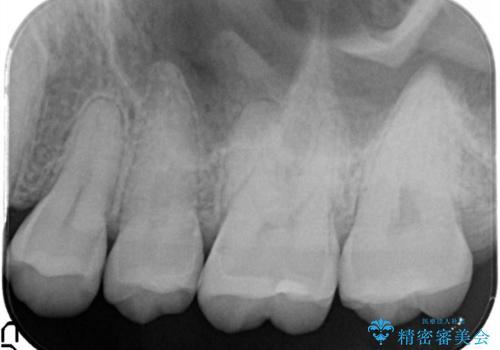 むし歯発見!e-max インレー(プレス)の治療後