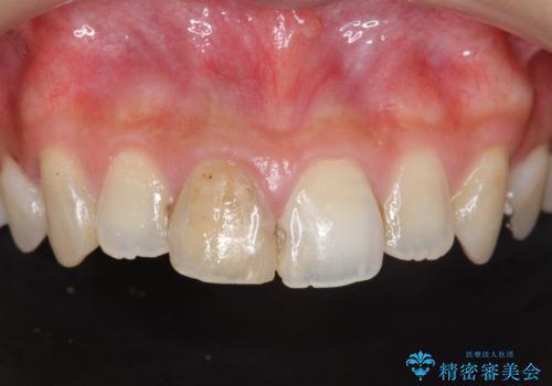 前歯 審美改善セラミック治療の治療前
