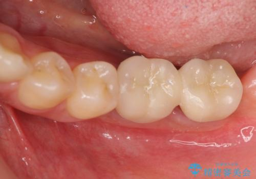 臼歯の噛み合わせをインプラントを用いて回復するの治療後