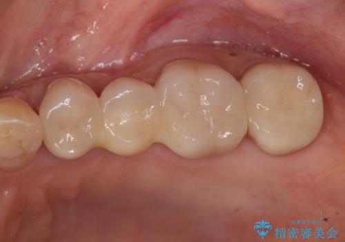 臼歯 咬合の再構成の治療後