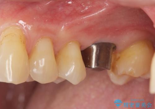 奥歯の欠損 インプラントによる咬合機能回復の治療中