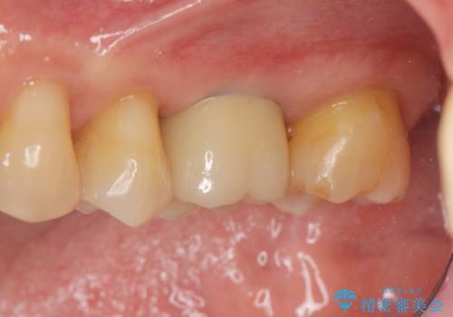 奥歯の欠損 インプラントによる咬合機能回復の症例 治療後