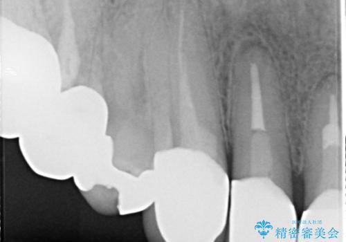 上の前歯の根元が黒い 根の治療を含めたセラミック再治療の治療後