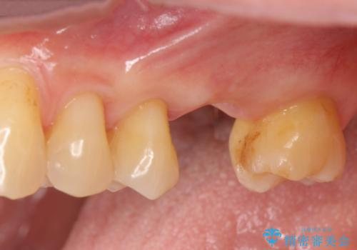 奥歯の欠損 インプラントによる咬合機能回復の症例 治療前