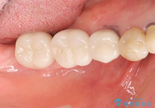 [遊離歯肉移植]  インプラント周囲の角化歯肉の獲得の治療後