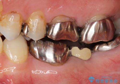 不適合ブリッジの除去  インプラントによる咬合再構成の症例 治療前