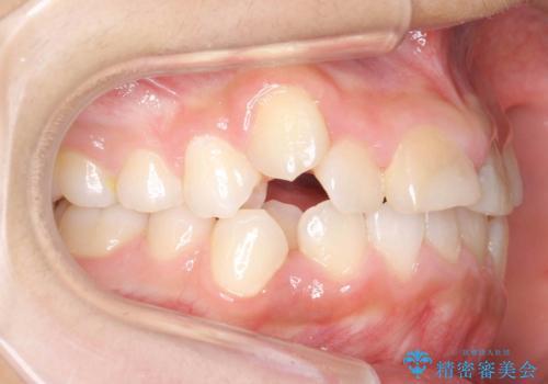 小さいころに前歯を折った がたがたの矯正+変色した前歯をセラミックにの治療前