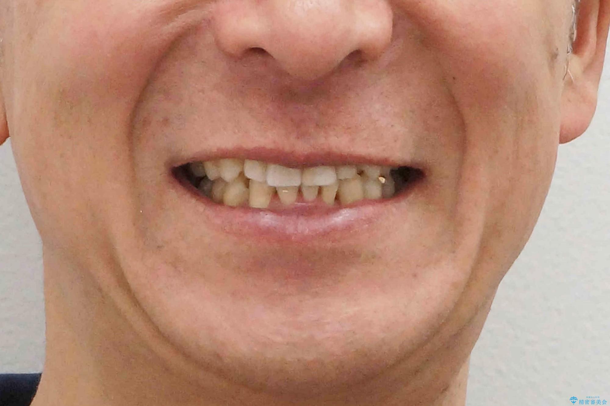 奥に引っ込んでいる歯をセラミックでかぶせたい 補綴前矯正 50代男性の治療後(顔貌)