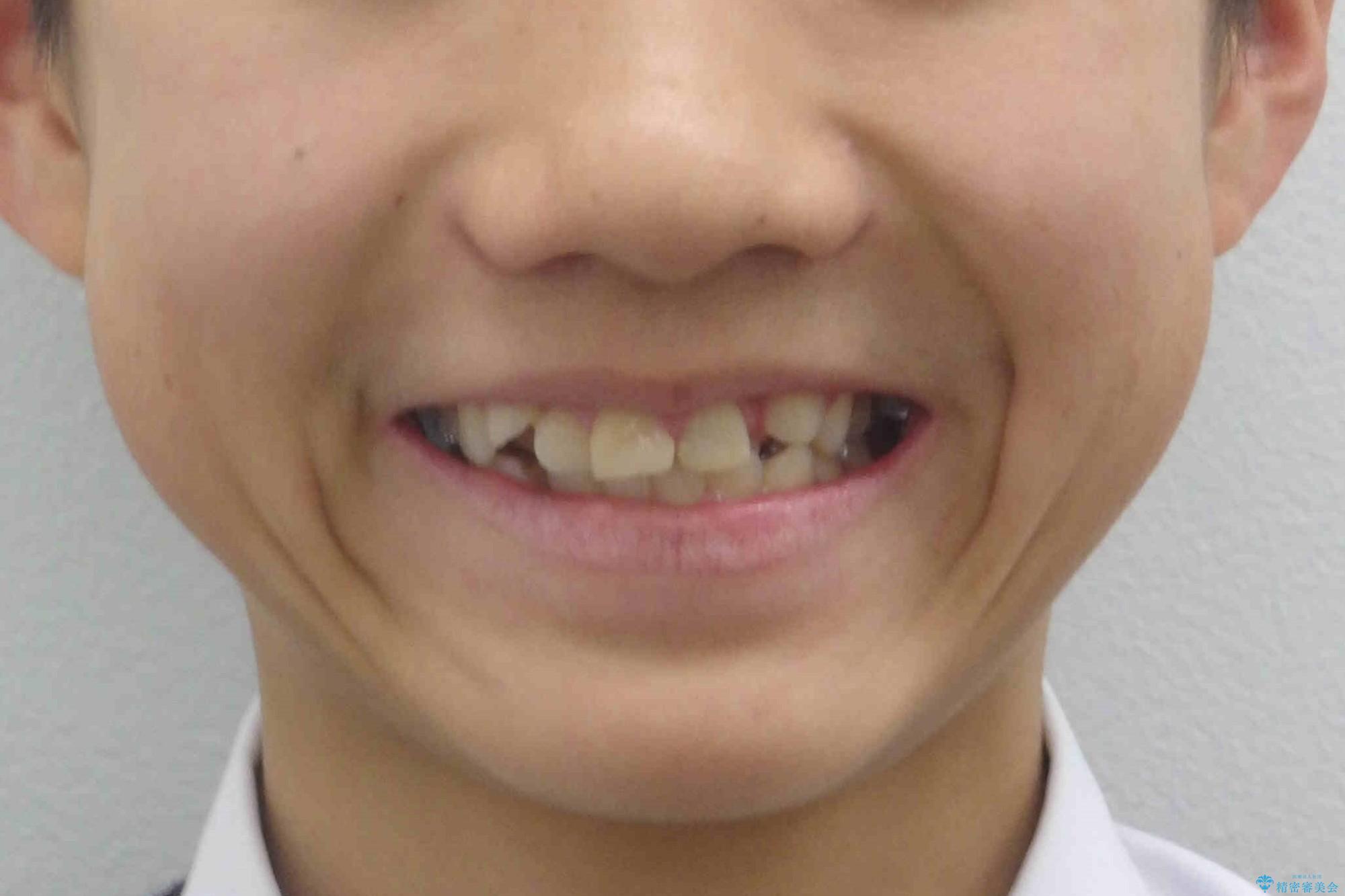 小さいころに前歯を折った がたがたの矯正+変色した前歯をセラミックにの治療前(顔貌)