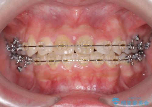 小さいころに前歯を折った がたがたの矯正+変色した前歯をセラミックにの治療中