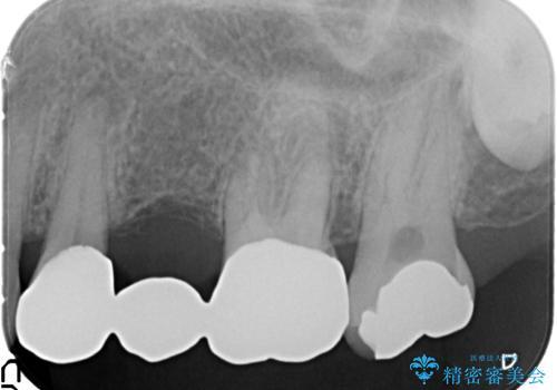 臼歯 咬合の再構成の治療前