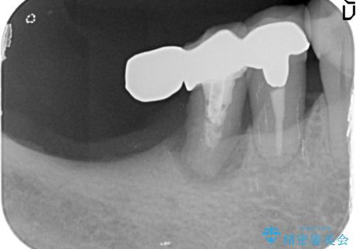 [遊離歯肉移植]  インプラント周囲の角化歯肉の獲得の治療前