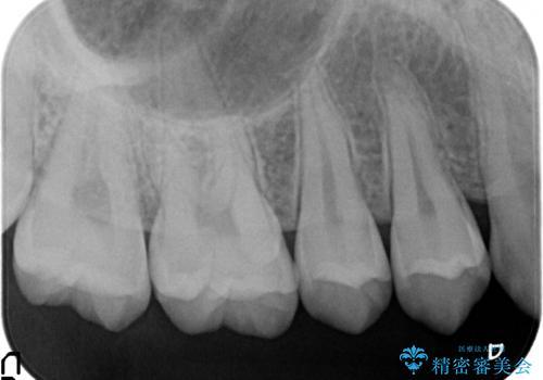 検診による初期虫歯の早期発見・早期治療の治療前
