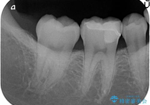セラミックインレー しみる歯の歯の治療の治療後