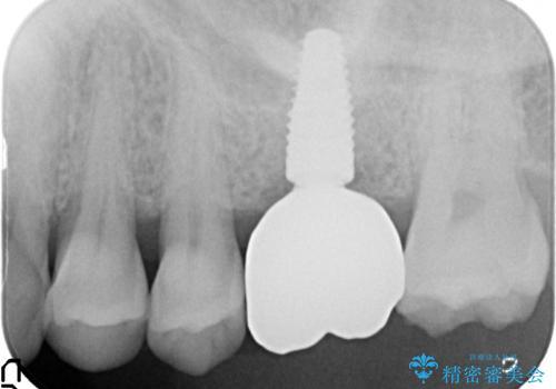 奥歯の欠損 インプラントによる咬合機能回復の治療後