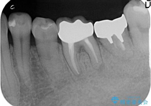 オールセラミッククラウン 外れてしまった銀歯の治療の治療後