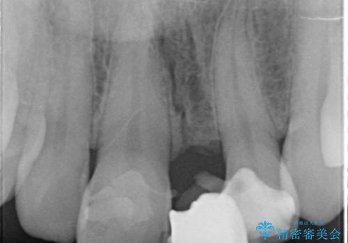 オールセラミッククラウン 変色した前歯を白く綺麗な歯への治療前