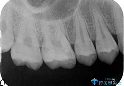 検診による初期虫歯の早期発見・早期治療の治療後