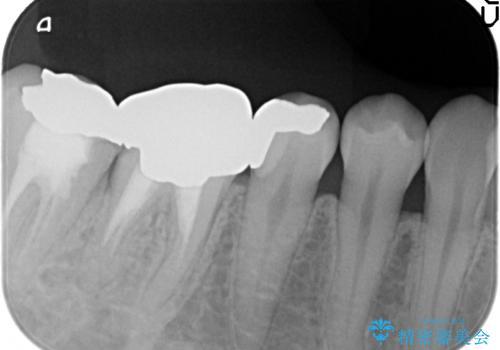 PGA(ゴールド)インレー 深い虫歯の虫歯の治療の治療後