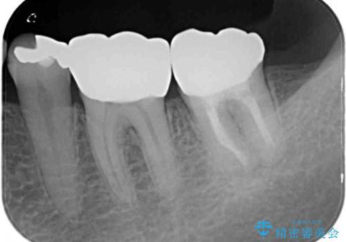 奥歯の虫歯と歯茎の腫れをセラミッククラウンで治療の治療後