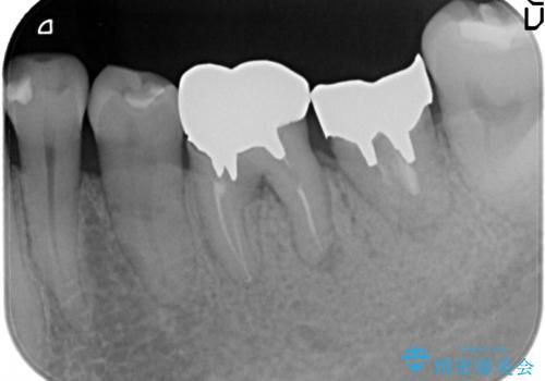 オールセラミッククラウン 外れてしまった銀歯の治療の治療前