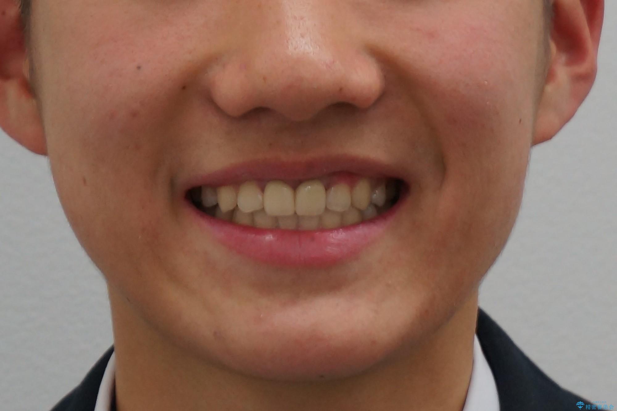 小さいころに前歯を折った がたがたの矯正+変色した前歯をセラミックにの治療後(顔貌)