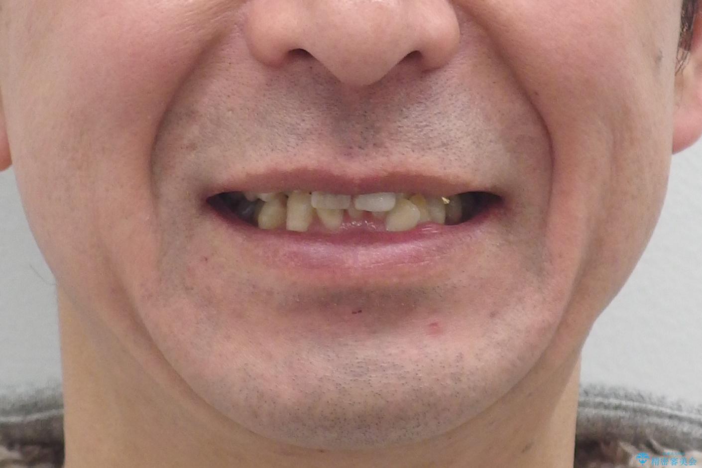 奥に引っ込んでいる歯をセラミックでかぶせたい 補綴前矯正 50代男性の治療前(顔貌)