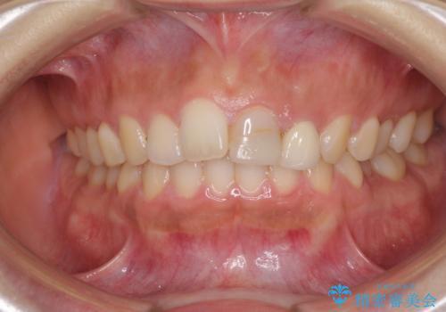 折れてしまって変色した前歯をオールセラミックにの治療前