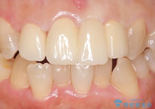 オールセラミッククラウン 変色した前歯を白く綺麗な歯への治療後