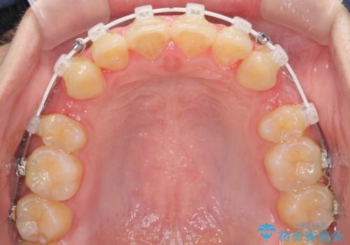 口元が出てるの気になる、引っ込めたい ワイヤーによる抜歯矯正で横顔の改善の治療中