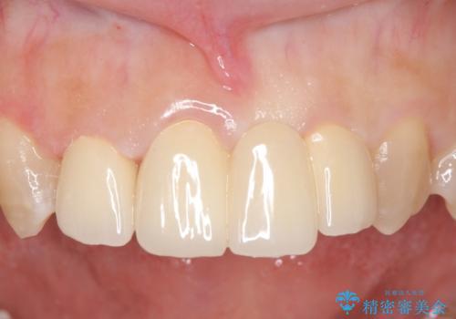 オールセラミッククラウン 変色した前歯を白く綺麗な歯への症例 治療後