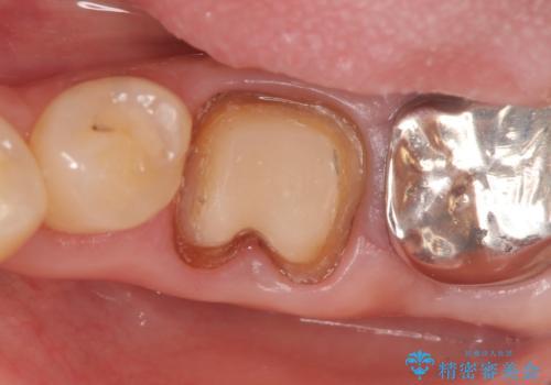 オールセラミッククラウン 外れてしまった銀歯の治療の治療中