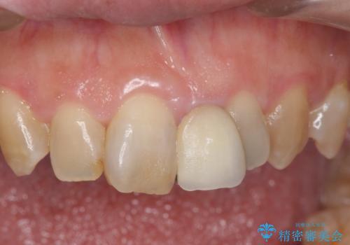 オールセラミッククラウン 変色した前歯を白く綺麗な歯への症例 治療前