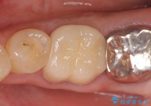 オールセラミッククラウン 外れてしまった銀歯の治療の症例 治療後