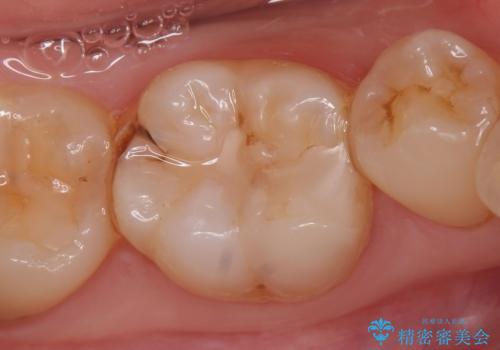 セラミックインレー しみる歯の歯の治療の症例 治療前