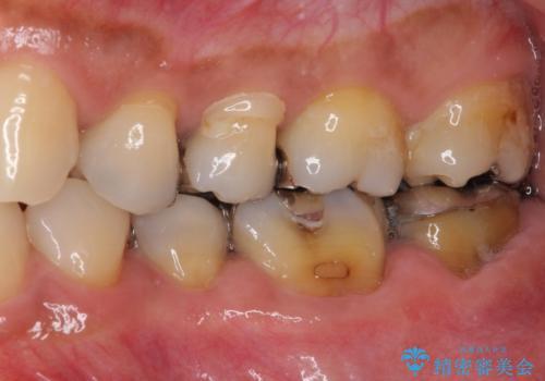 奥歯の虫歯と歯茎の腫れをセラミッククラウンで治療の治療前