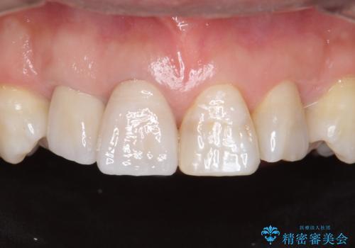 奥に引っ込んでいる歯をセラミックでかぶせたい 補綴前矯正 50代男性の症例 治療後
