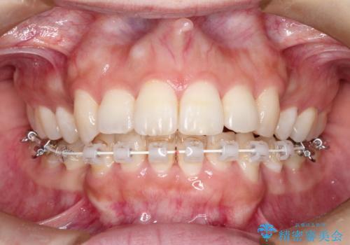 前歯のガタガタと出っ歯が気になる ハーフリンガルによる抜歯矯正の治療中