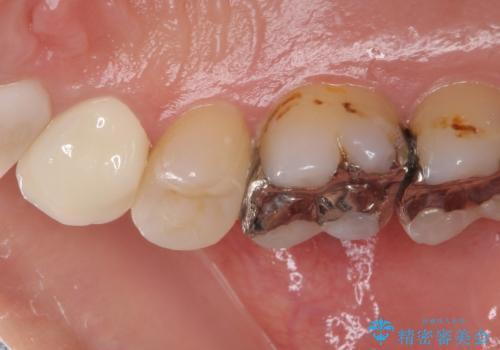 痛みが続く銀歯をセラミックにの治療後
