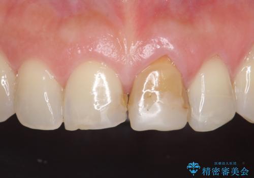 オールセラミッククラウン 変色が気になる前歯の治療の治療前