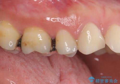 痛みが続く銀歯をセラミックにの治療前